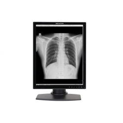MONITOR MEDICAL COLOR DEDICAT PENTRU STUDII CLINICE BEACON G32S+