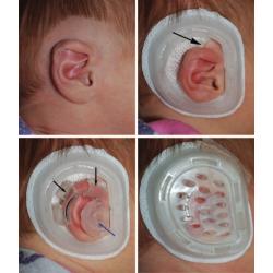 Dispozitiv pentru corectarea formei urechii