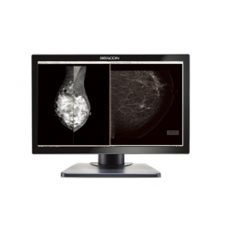 Monitor medical radiologic pentru diagnostic mamografie DUAL BEACON C81W+