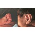 Dispozitiv corectie urechi
